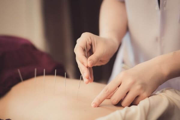 acupuncture person inserting fine needles on someones back